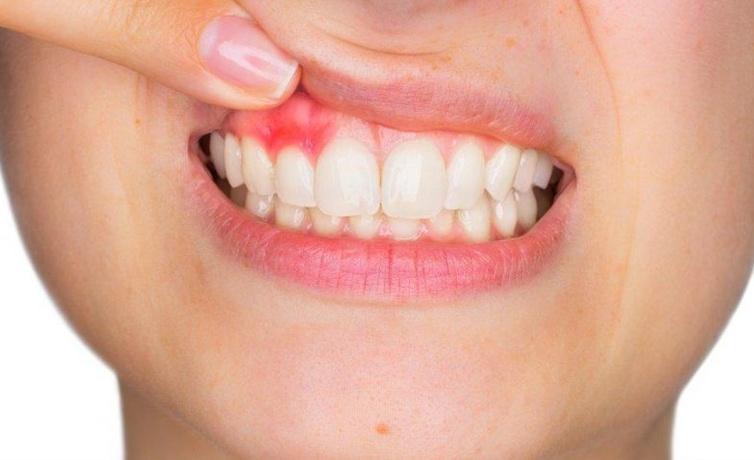 Diş eti çekilmesi nedir dişleri gıcırdatmak ve sıkmak sebep oluyor!